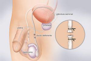 vasectomia - Métodos Anticoncepcionais
